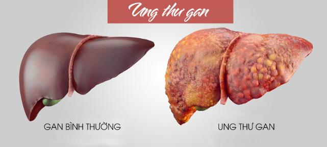 cac-loai-benh-gan-thuong-gap